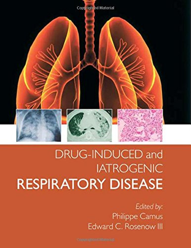 Drug-induced and Iatrogenic Lung Disease